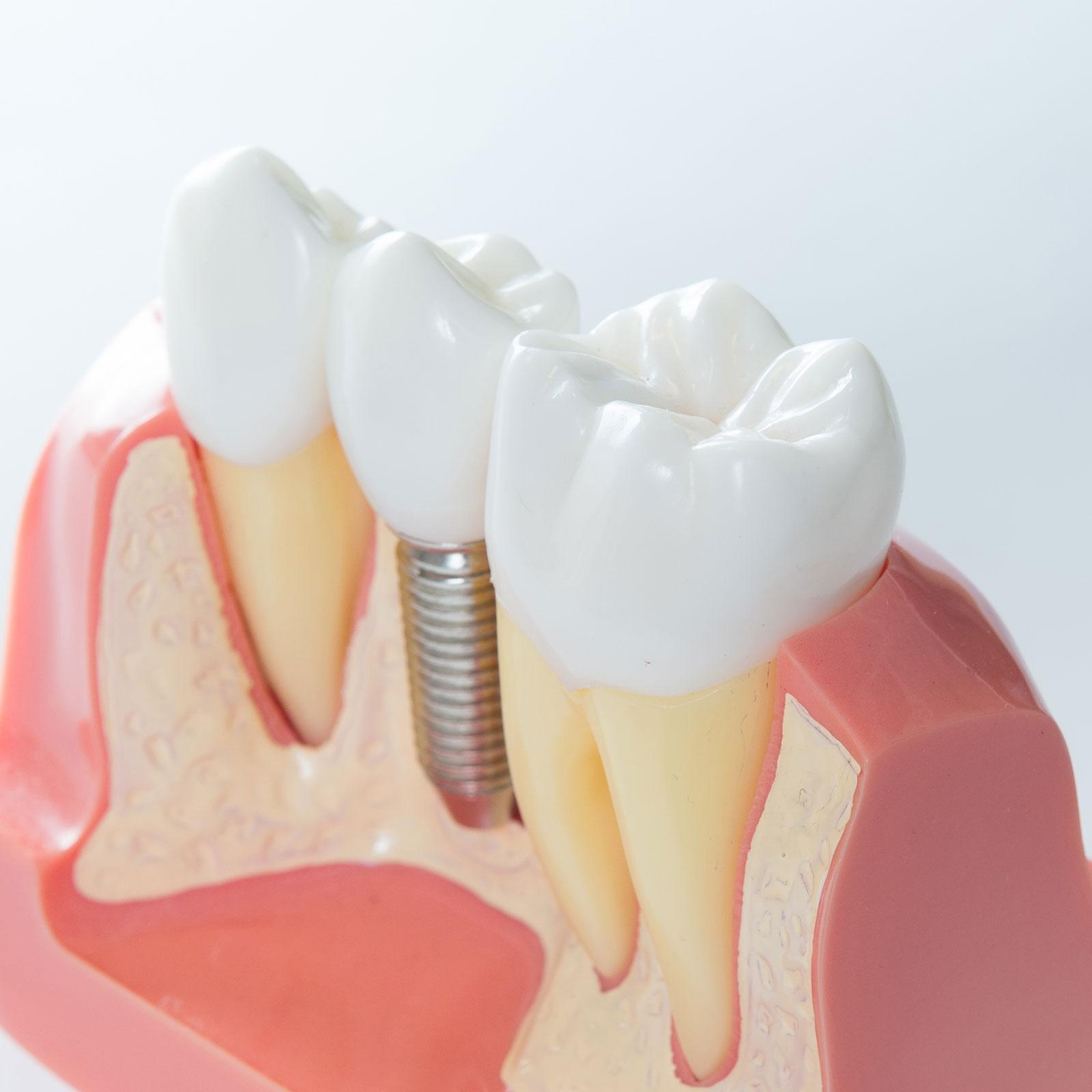 Studio Dentistico Meloni Pisano Protesi